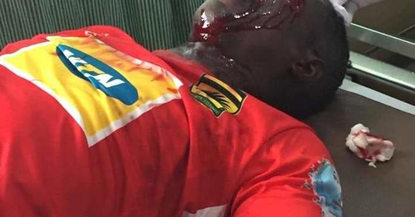 Special Competition: Fights and Gunshots at Berekum: Kotoko officials hospitalized